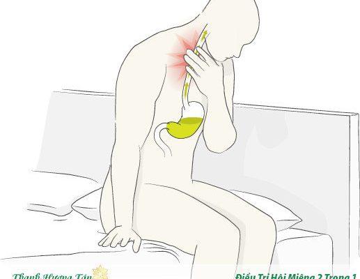 trào ngược dạ dày ban đêm gây chua miệng