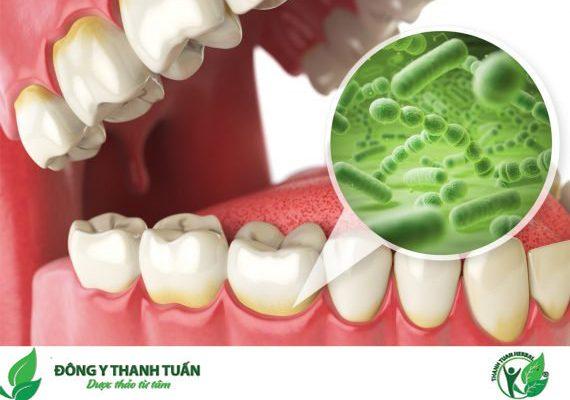 viêm lợi do vi khuẩn làm chân răng bị hôi