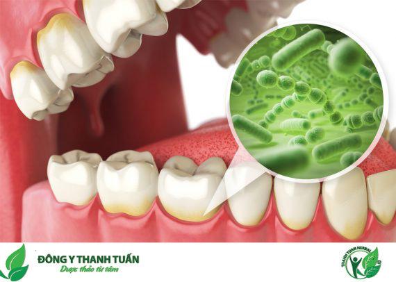 vi khuẩn cư trú chân răng gây viêm lợi