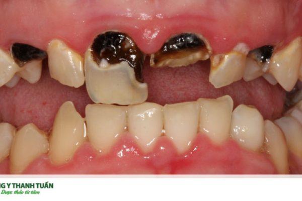 Sâu chân răng do đâu