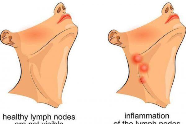 Những nguyên nhân gây viêm họng nổi hạch