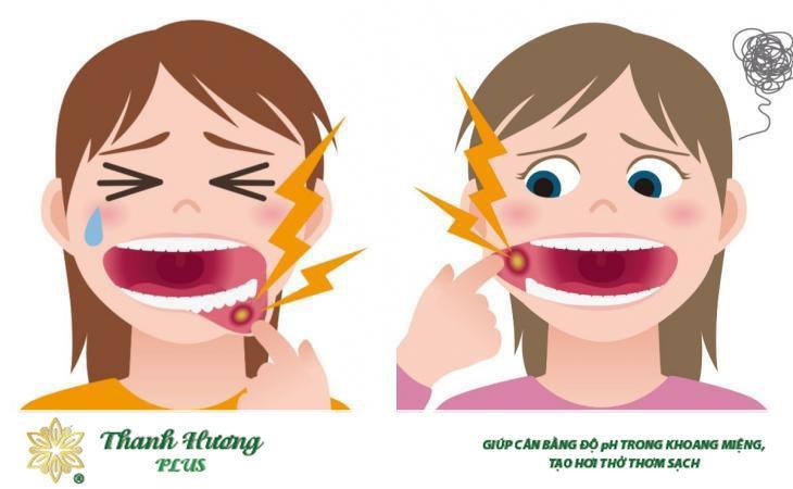 Viêm miệng là gì?