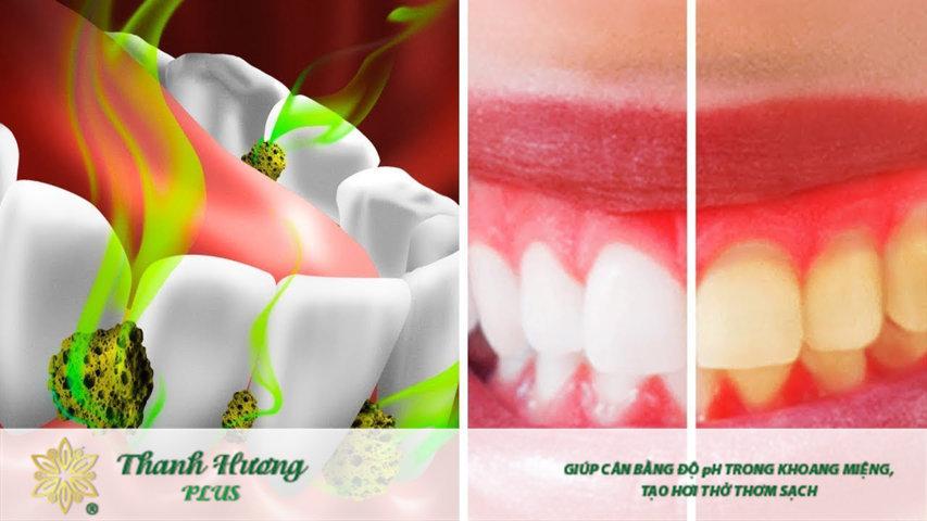 Thức ăn thừa và vi khuẩn cư trú khiến răng sâu có mùi hôi