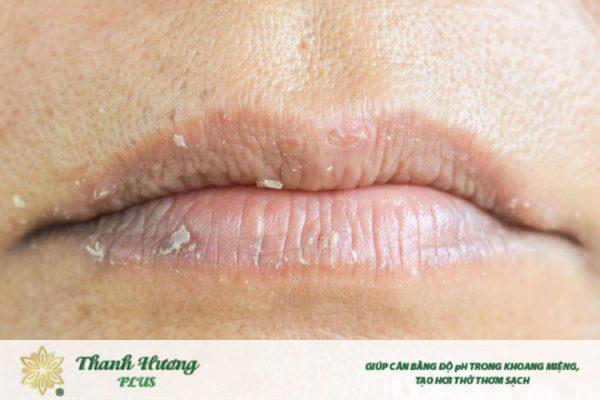 Khi bị khô môi, bạn sẽ còn cảm thấy đau đớn do môi nứt nẻ