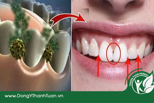 Vệ sinh răng miệng đầy đủ là cách chữa hôi miệng do sâu răng dễ áp dụng