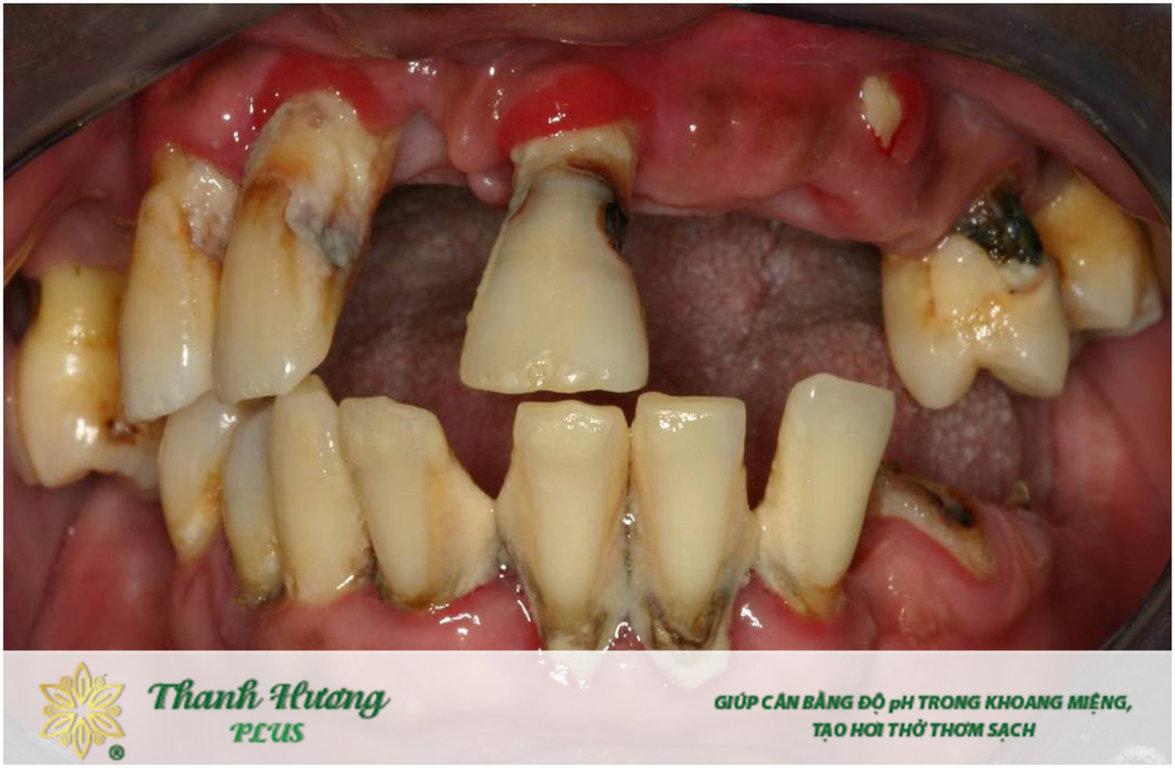 Viêm lợi gây hôi miệng và mất răng