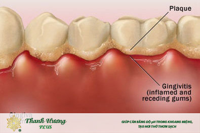 Vi khuẩn và mảng bám là nguyên nhân chính của viêm lợi gây hôi miệng