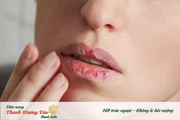 Miệng khô sẽ là môi trường thuận lợi tạo ra mùi hôi miệng