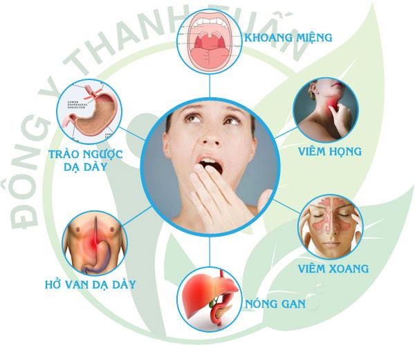Top 5 Nguyên nhân gây hôi miệng hàng đầu